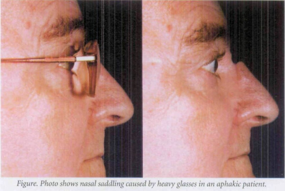 Iatrogenic Nasal Saddling - A Consequence of Aphakia