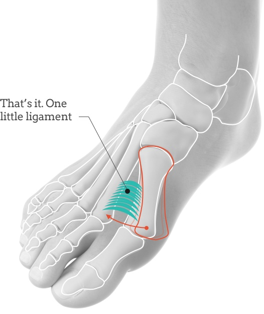 Achieve More with Less with Syndesmosis Bunion Surgery